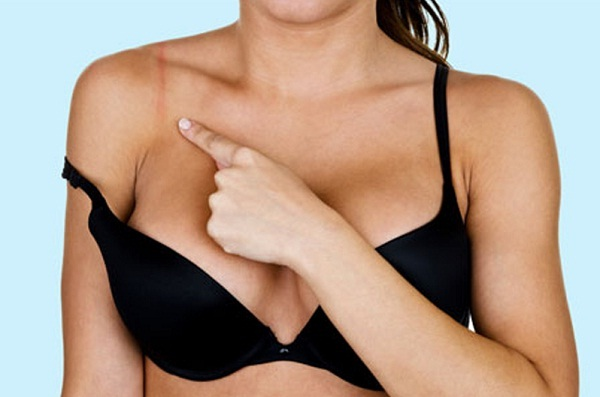 bra straps dig into shoulders can cause dents and pain in shoulders